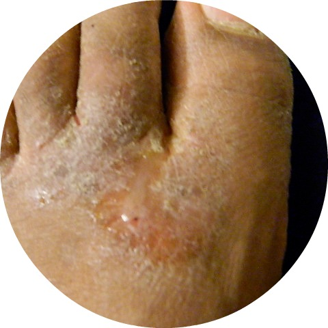 8 Common Foot Problems - Skin Problems Center: Medical ...
